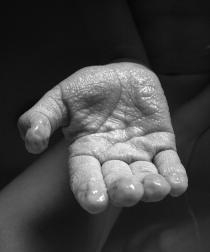 Wrinkled_hand